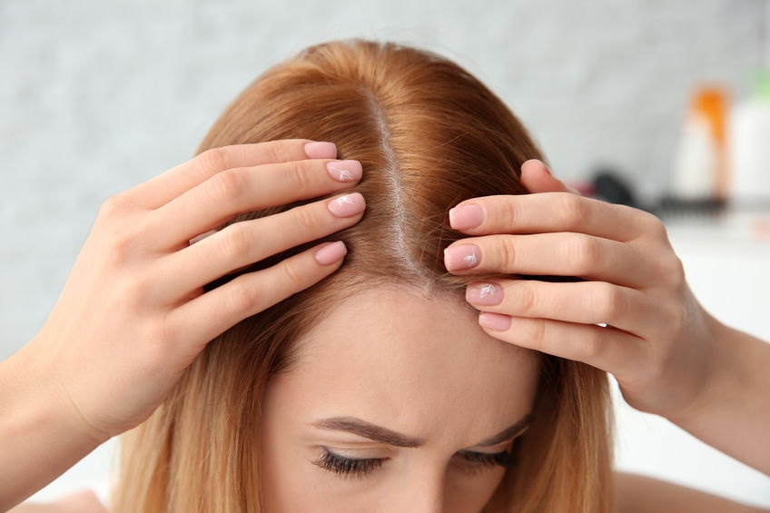 What Can Cause Female Hair loss and just how Will it Be Treated